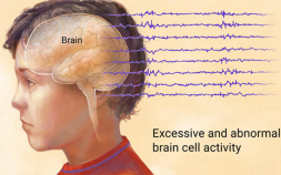 epilepsy symptoms, epilepsy, causes of epilepsy
