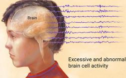 epilepsy symptoms, epilepsy, causes of epilepsy