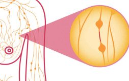 inflammatory breast cancer, breast cancer symptoms, breast cancer signs, skin dimpling