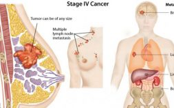 stage 4 breast cancer, metastatic breast cancer, how does breast cancer spread