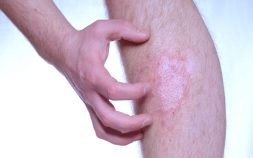 Plaque Psoriasis: An Overview