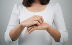 Chronic Atopic Dermatitis Treatment